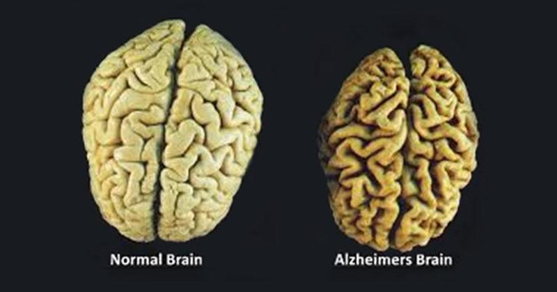 3-vitamins-prevent-brain-loss-1589369