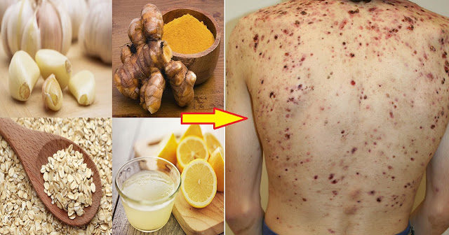 five-best-natural-remedies-against-back-acne-9660667
