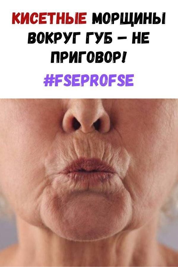 fse-pro-fse-5-2051162