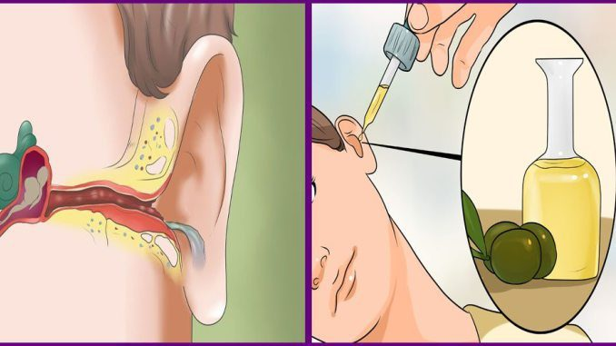 how-to-get-rid-of-painful-earaches-and-ear-infections-naturally-6682560